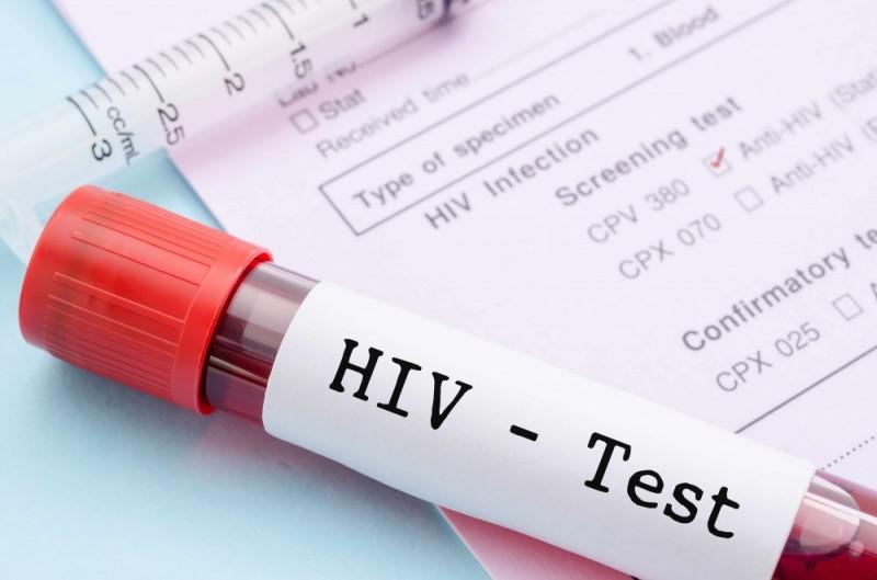 autoteste para detectar o HIV